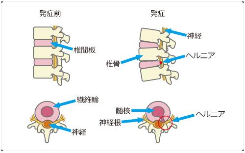 椎間板ヘルニア発症前と発症時