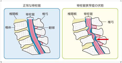 正常な脊柱管と脊柱管狭窄症の状態
